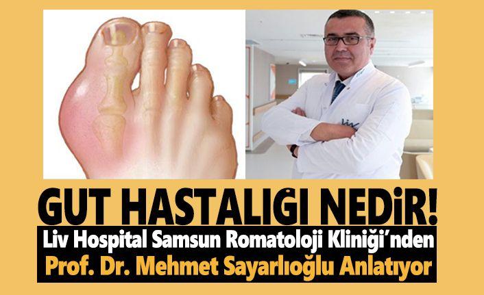 Liv Hospital Bilgilendiriyor,Gut Hastalığı Nedir!