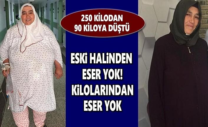 250 Kilodan 90 Kiloya Düştü