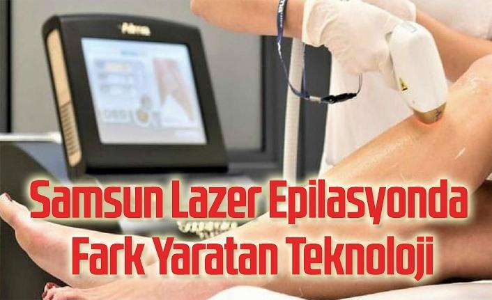 Samsun Lazer Epilasyonda Fark Yaratan Teknoloji