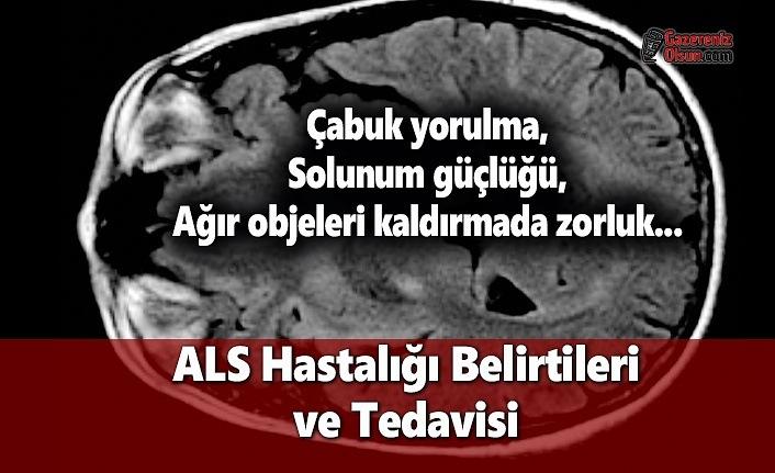 ALS Hastalığı Belirtileri Nelerdir? ALS Hastalığı Tedavisi