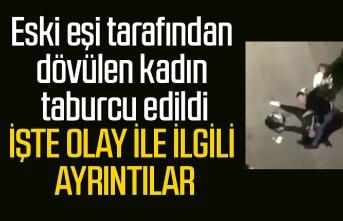 Eski eşi tarafından dövülen kadın taburcu edildi, Samsun Haber
