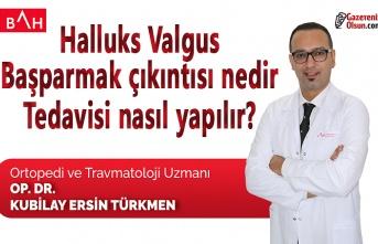 Halluks Valgus ya da başparmak çıkıntısı nedir, tedavisi nasıl yapılır?